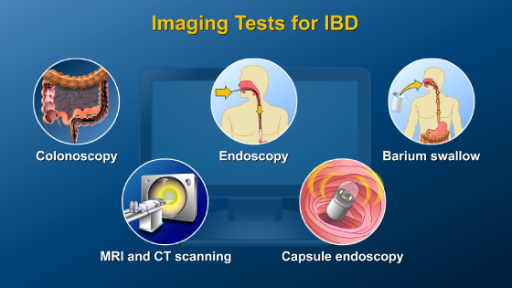 Animation - Diagnosing IBD