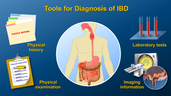 Slide Show - Diagnosing IBD