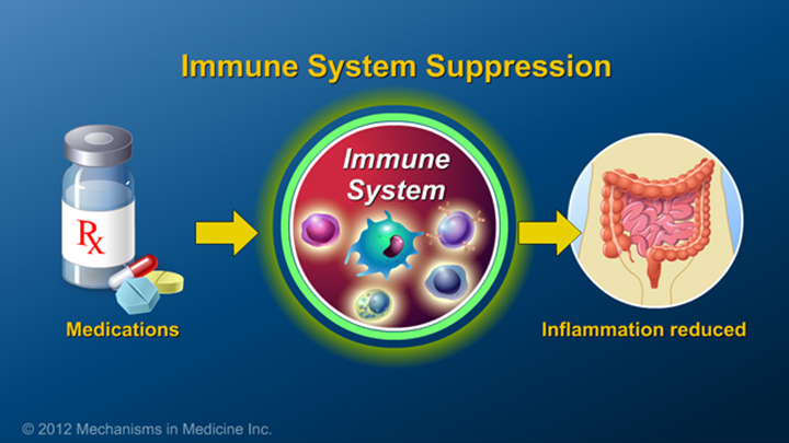Immune System Suppression and IBD