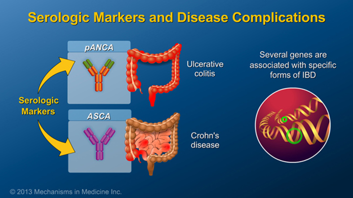 Serologic Markers and Disease Complications