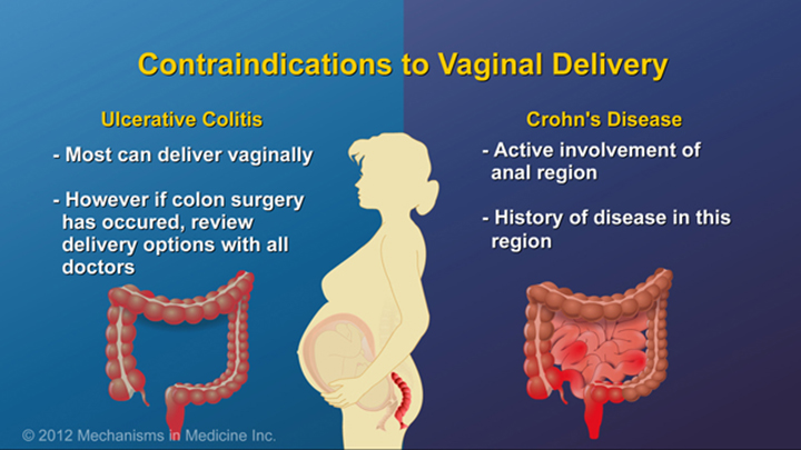 Contraindications to Vaginal Delivery and IBD