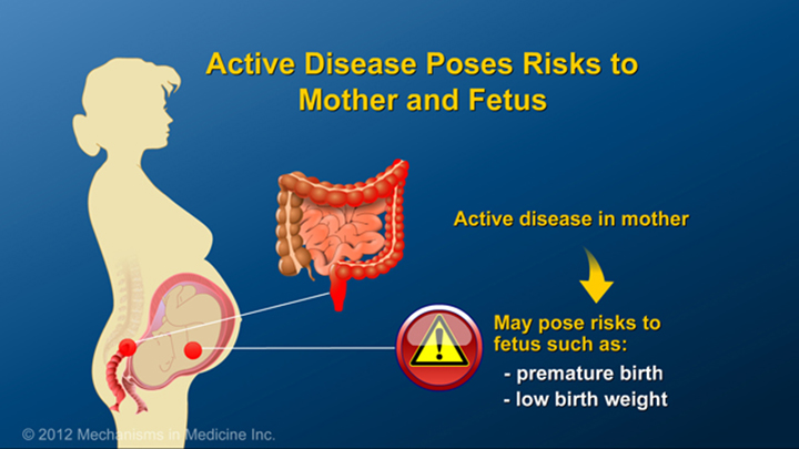 IBD Risks to Mother and Fetus