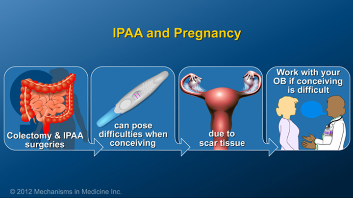 IPAA and Pregnancy for IBD