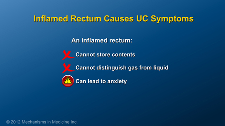 Inflamed Rectum and Ulcerative Colitis