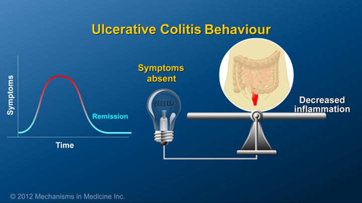 Ulcerative Colitis Behaviour