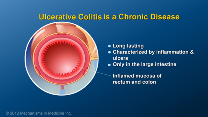 Ulcerative Colitis is a Chronic Condition