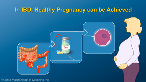 Slide Show - Optimizing Pregnancy Outcomes with IBD