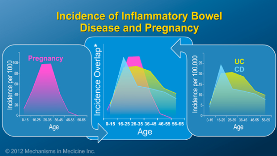 Pregnancy and IBD